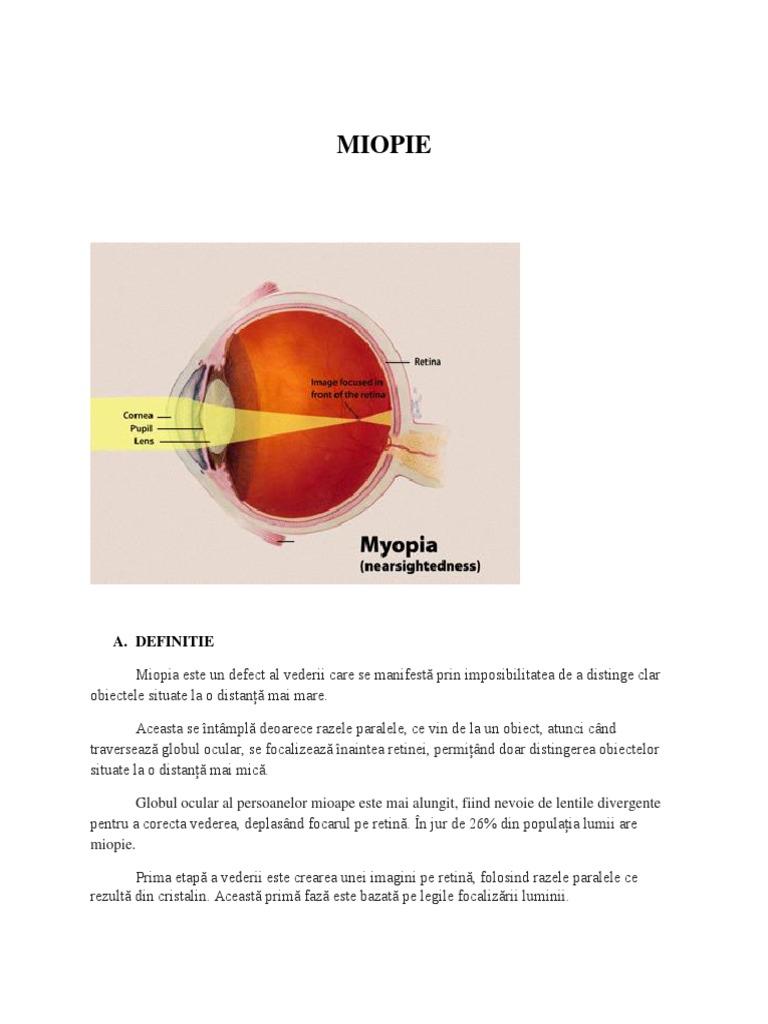 tulburări de vedere după cataractă