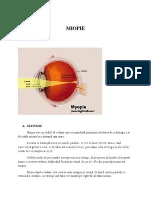 Cum se poate măsura cu precizie miopia