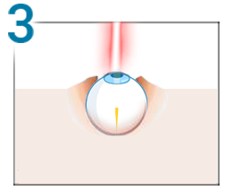 M-am operat de miopie cu laser prin tehnica PRK