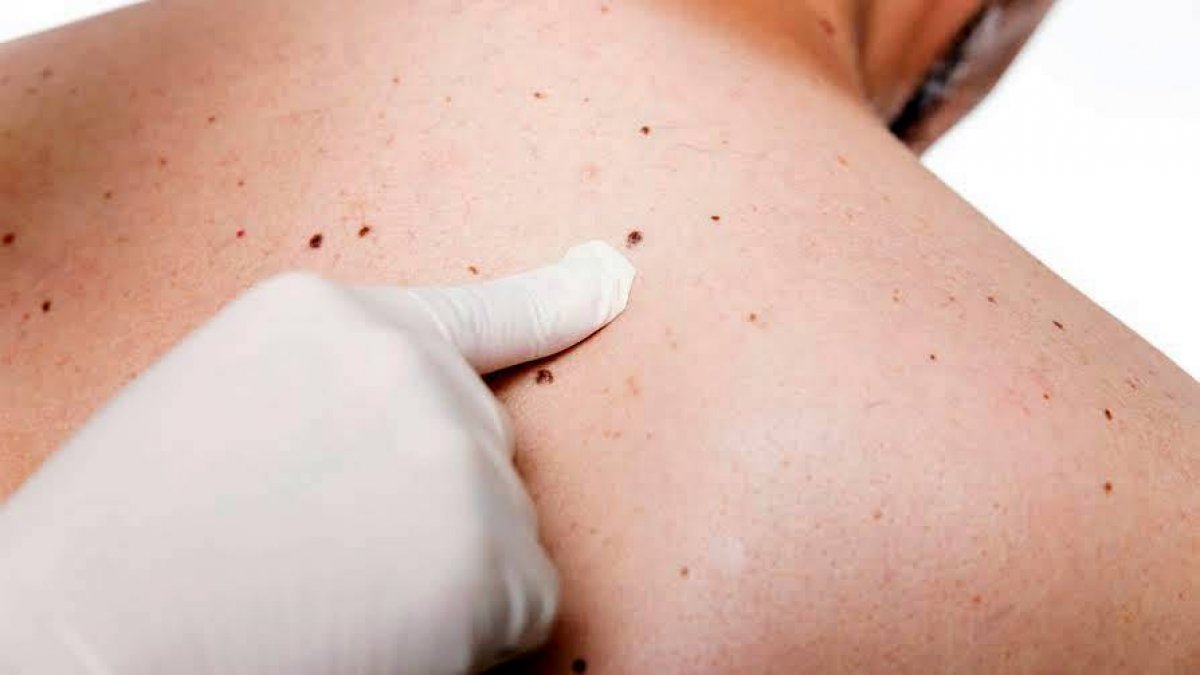 Stadiile melanomului malign - Dr. Leventer Centre -