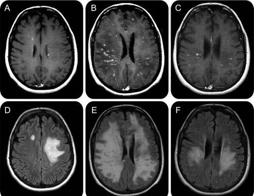 dubynin vederea creierului cum să restabiliți vederea cu antrenamentul