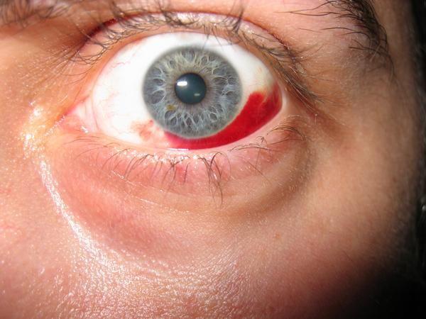 dureri de ochi din cauza vederii slabe