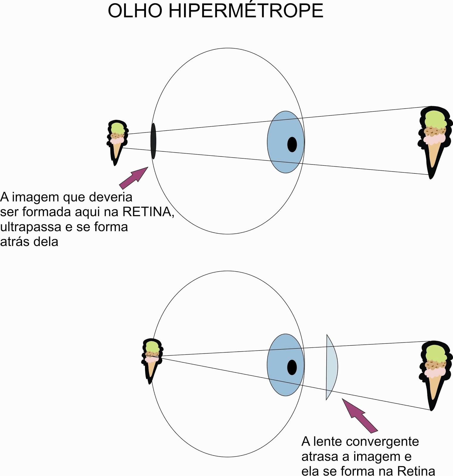 cum să înrăutăți dramatic vederea medicamente pentru tulburări de vedere