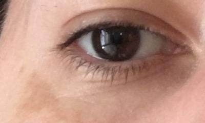 totul despre vederea ochilor concluzii despre viziune