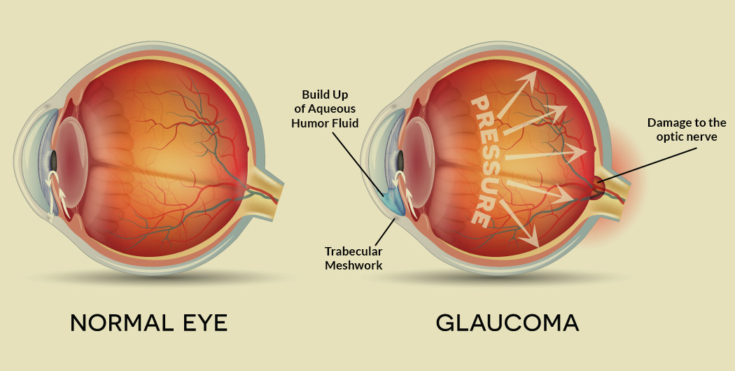 Este posibilă corectarea vederii în miopie? - Culoare orbire September
