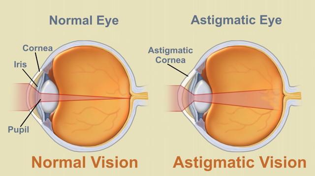 Ce este Astigmatismul: definiție, simptome, diagnostic și tratament