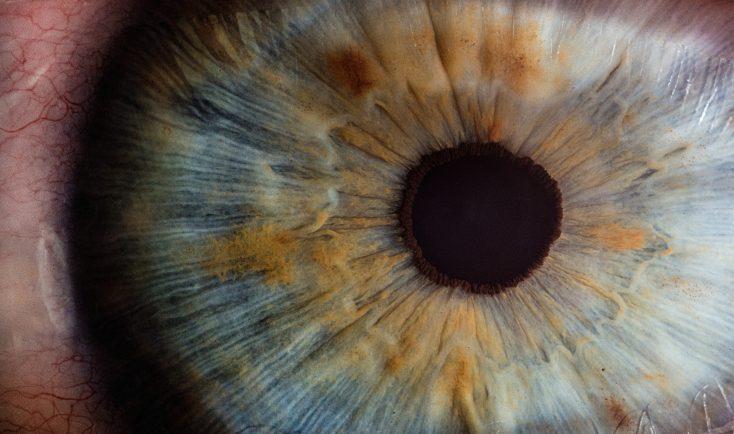 severitatea pierderii vederii vederea doare
