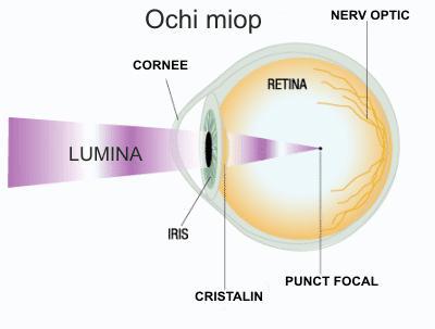 miopie chirurgie ochi cu laser
