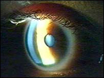 De ce nu vede ochiul după o intervenție chirurgicală cu glaucom