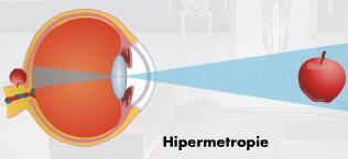 hipermetropie a vederii