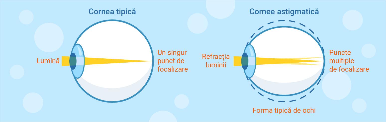 hipermetropie cu vedere afectată