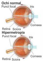 patologii de vedere neonatală afectează lamblia vederii