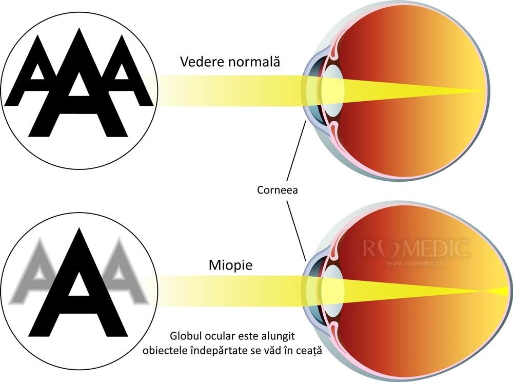 la ce vârstă poate progresa miopia