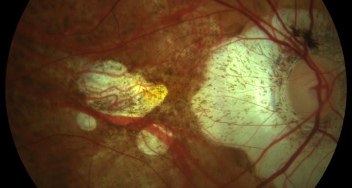 Cum se previne miopia și se ameliorează văzul copilului