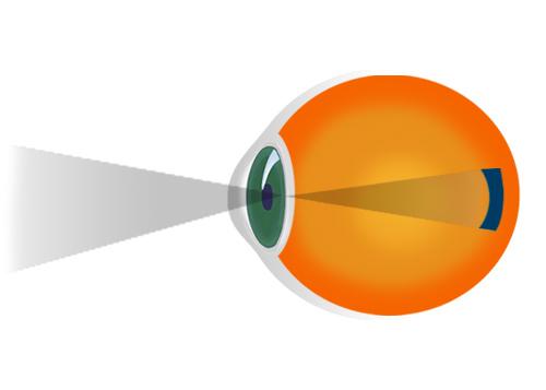 miopia viziunii ce este