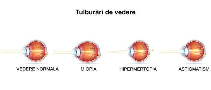 miopie congenitală cu astigmatism
