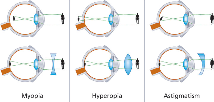 miopie cu tratament cu astigmatism