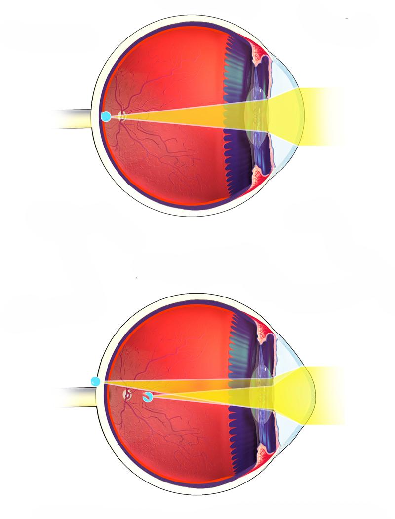miopie dioptrii astigmatism