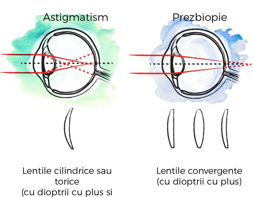 miopie și asigmatism