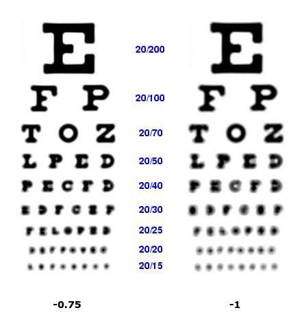 scăderea vederii cu miopie