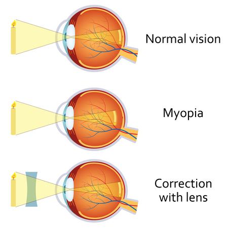 viziunea 5 este câte dioptrii acuitatea vizuală după operație