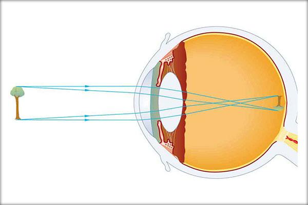 miopie în formă de ochi când viziunea 0 5 tratament