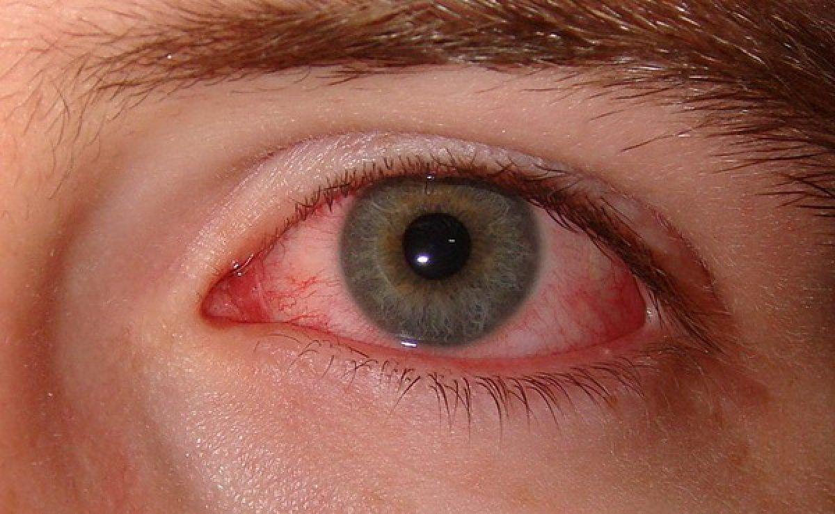 Cum se manifestă sindromul de ochi uscat? - Medicis
