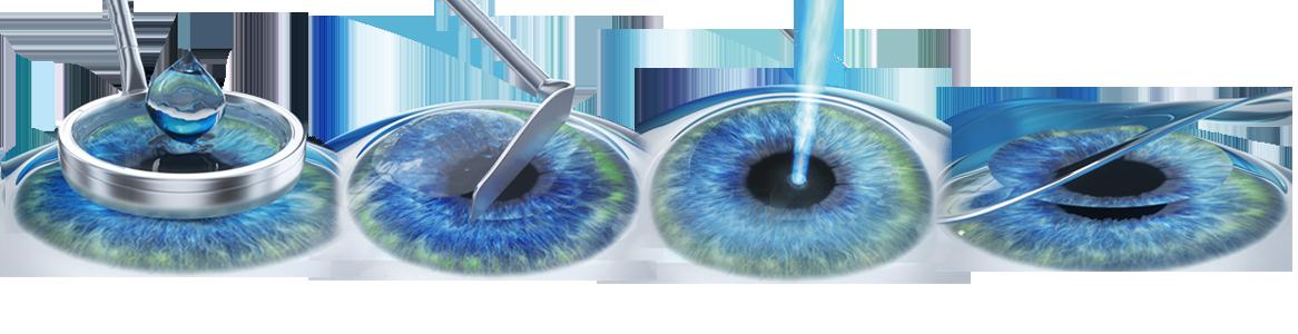 ochii exercită miopie