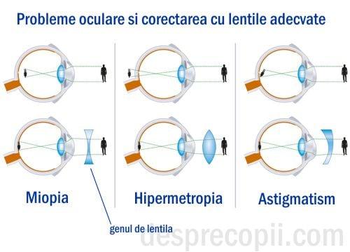ochii și vederea hipermetropie