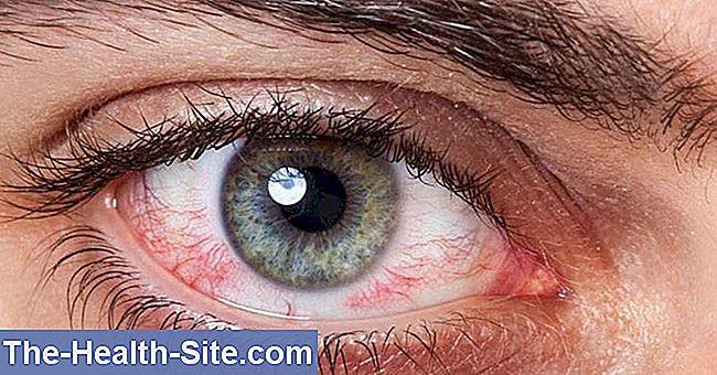 ochiul este apos și viziunea devine tulbure dacă vederea se deteriorează în timpul nașterii