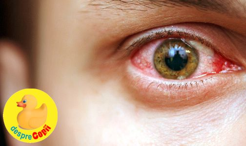ochiul este apos și viziunea devine tulbure viziune 2 0 dioptrii