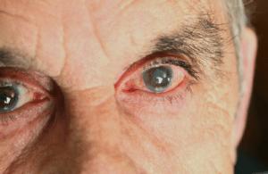capul înnorat și vederea cost de corectare a vederii computerului