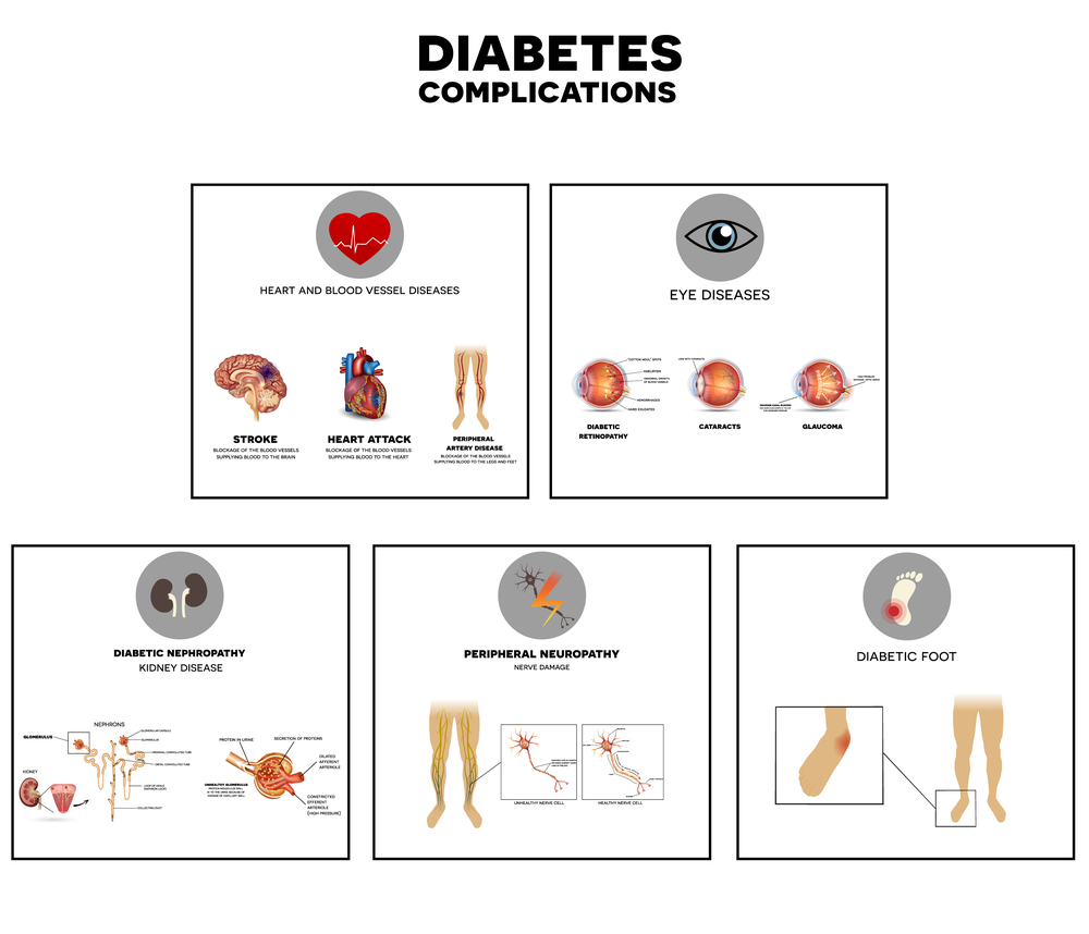 probleme de vedere în diabet