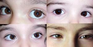 pupile dilatate cu vedere slabă)