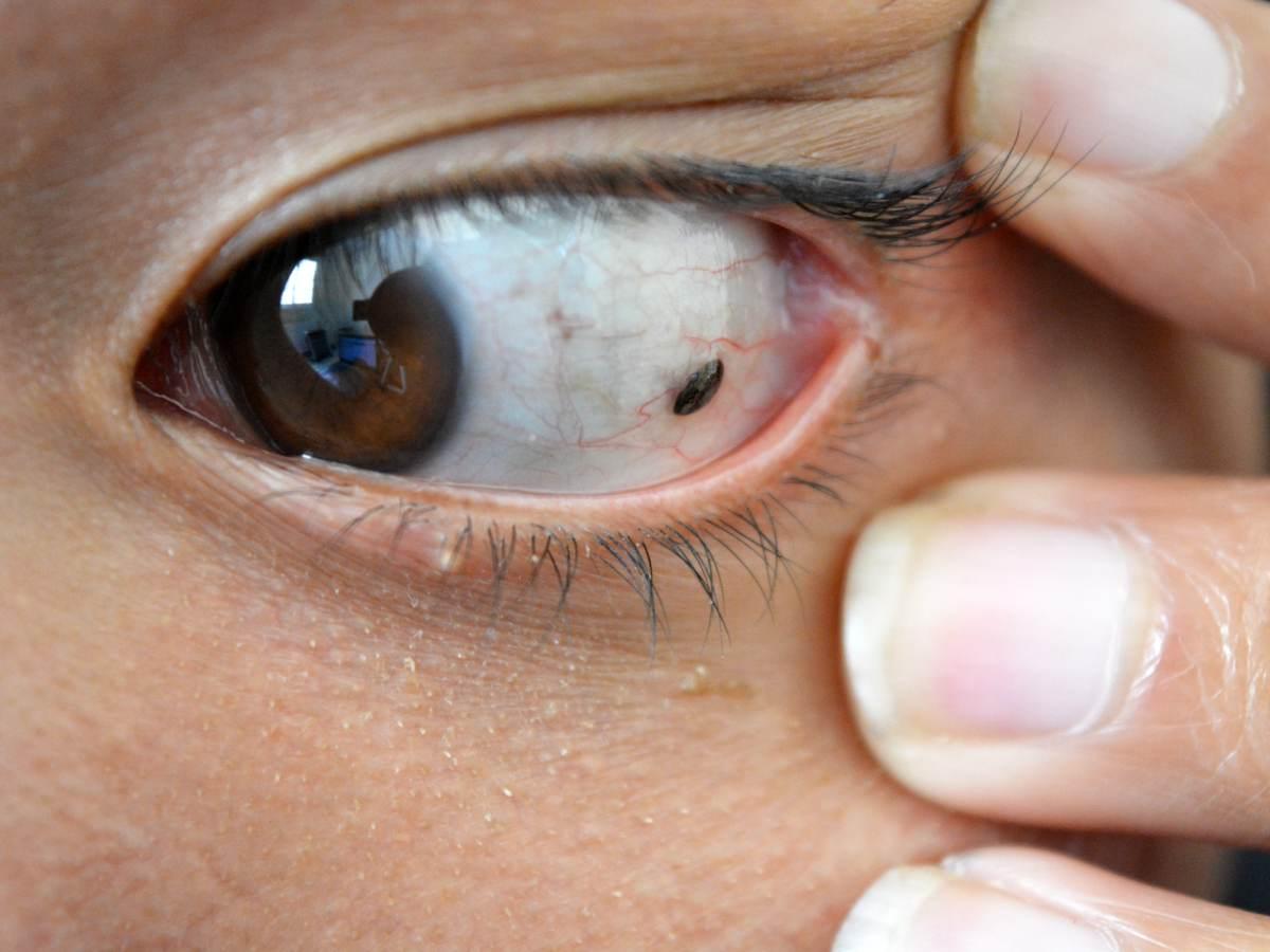 Miopia la copiii – se tratează, da sau nu? | ProMED