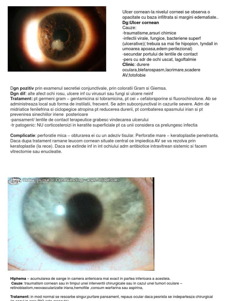 4. Keratocon - Miopie