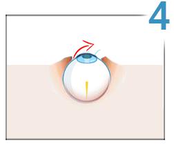 vedere redusă la un ochi cum se restabilește hipermetropia senilă