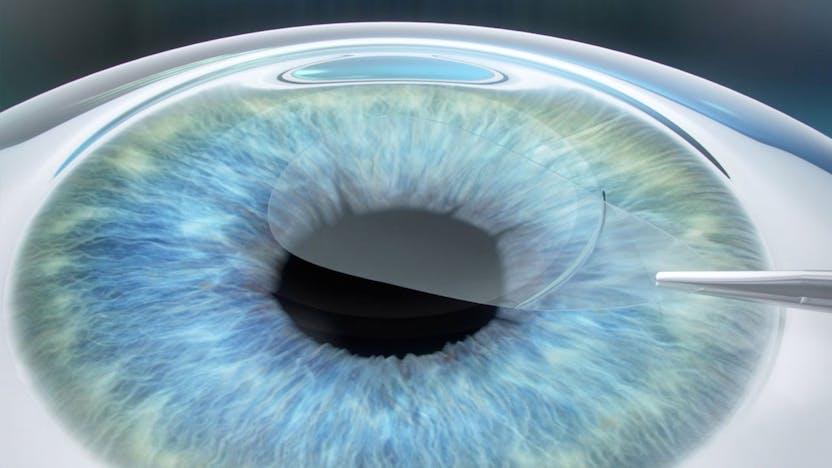 restaurarea chirurgiei cu laser a vederii vederea dublă în ochi