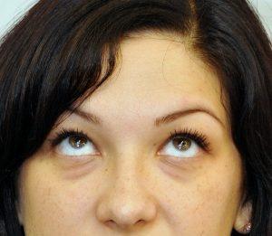 tehnica simplă de restaurare a vederii