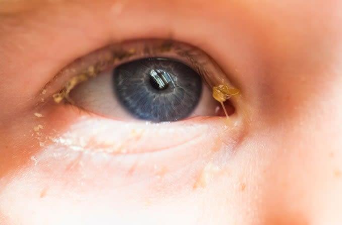 test ocular Chernihiv