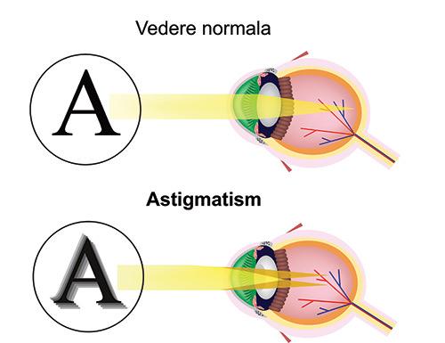 tulburări de vedere astigmatism