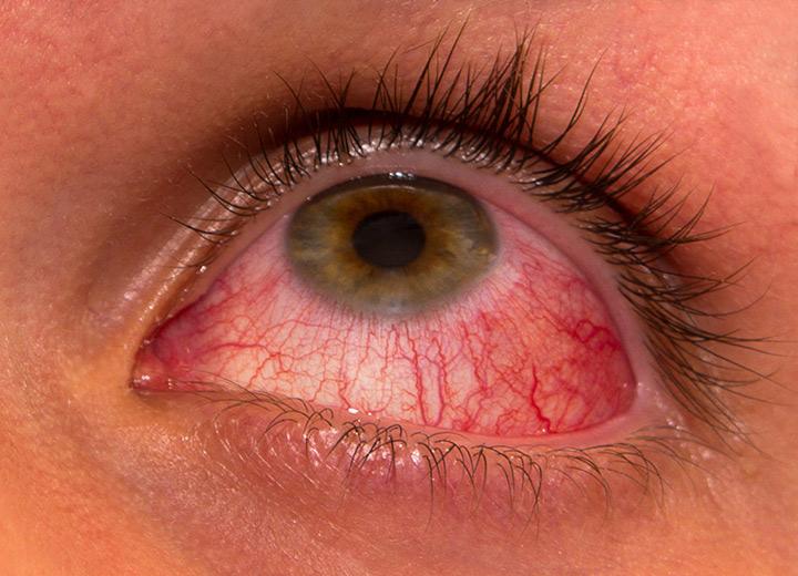 vederea s-a deteriorat după 45 de ani viziune slabă cum se spune