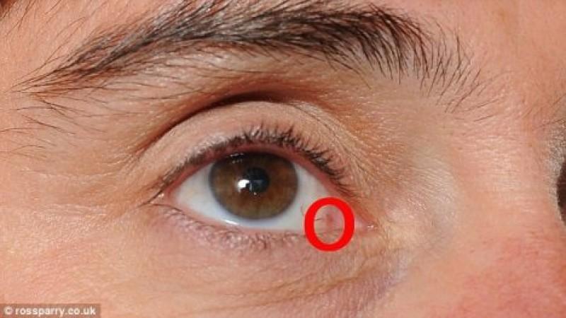 Ce boli dau tulburări de vedere