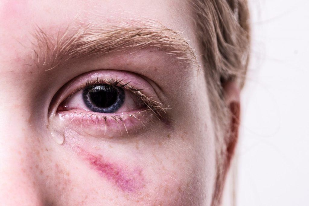 amețeli și tulburări de vedere viziune după îndepărtarea uleiului de silicon