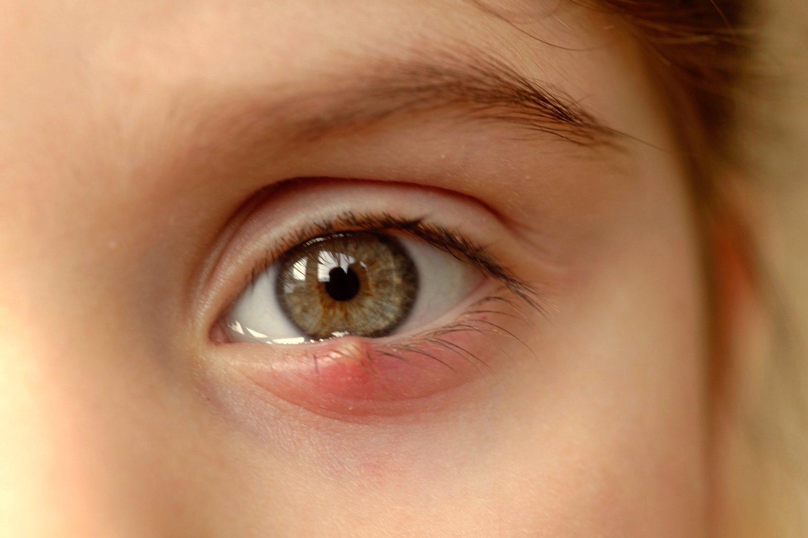 viziunea s-a deteriorat aproape, cu greu văd vedere ochii sănătoși