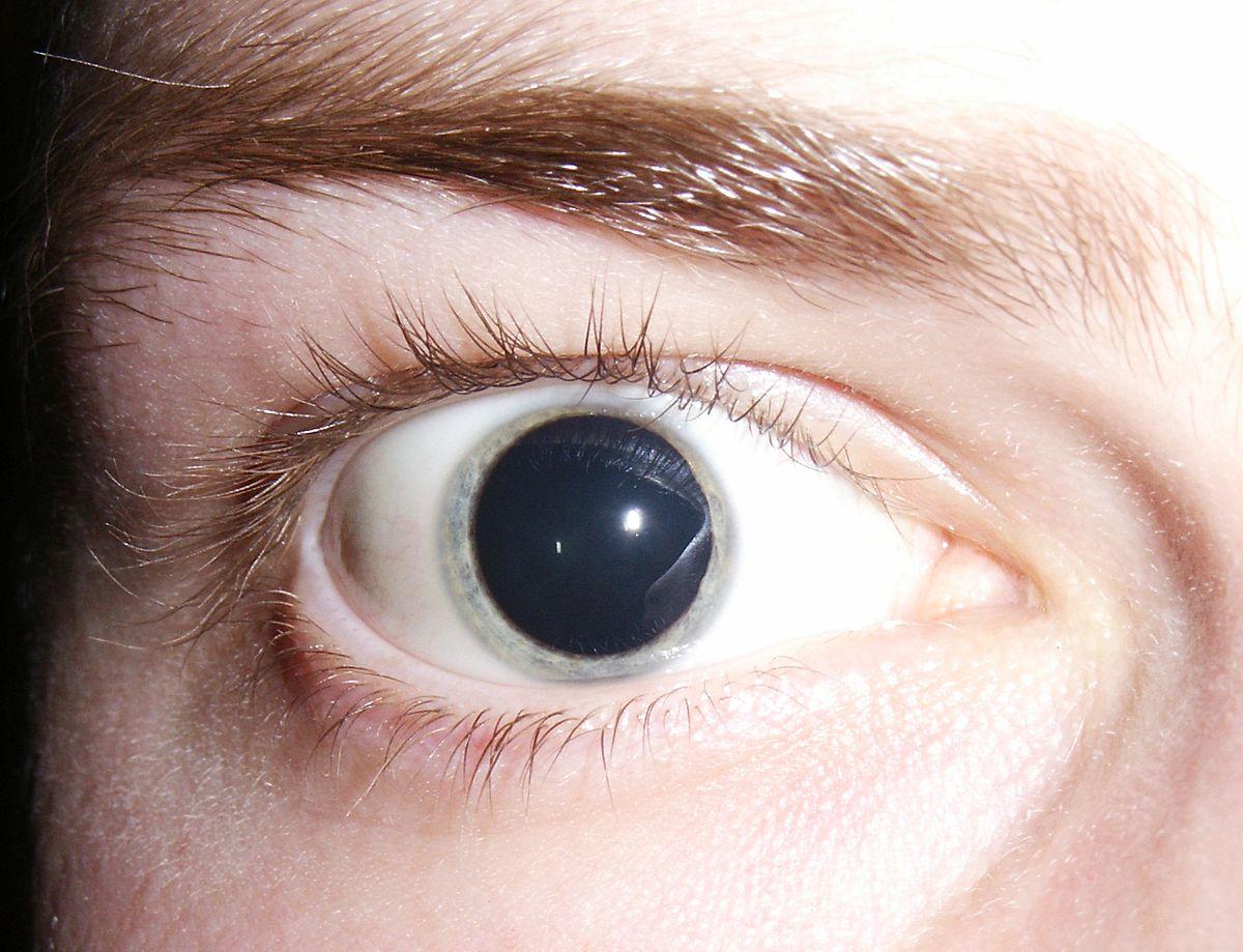 vederea dilatată a pupilei sa deteriorat afectarea vizuală afectează