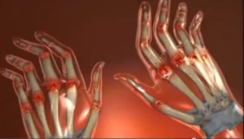 vederea și artrita reumatoidă