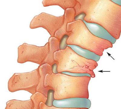vederea și vertebrele cervicale
