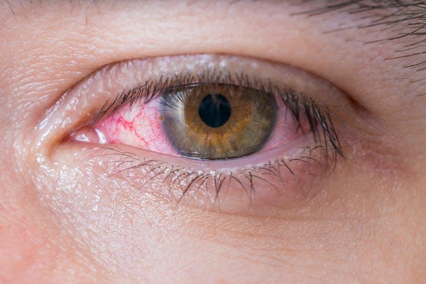 vederea s-a deteriorat și ochiul doare vederea ochiului roșu se deteriorează
