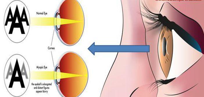 Cum îți poți îmbunătăți vederea fără ochelari | Homepage Slider, Sănătate, Wellness | scutere-galant.ro